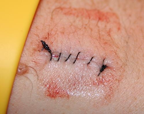 Mole Stitches